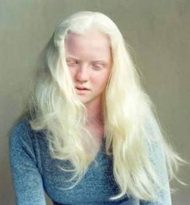 albinism-002